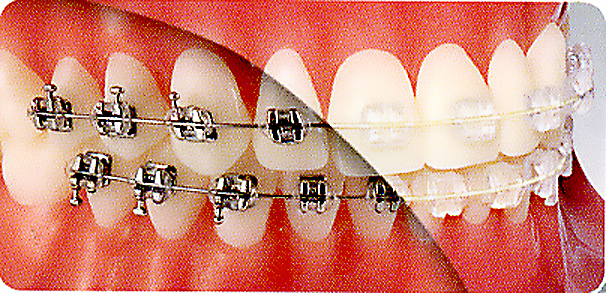 Pre orthodontic trainer for adults
